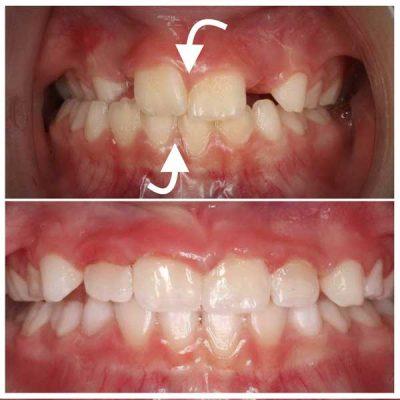 Spotlight: CG Orthodontics